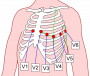 tecnica:misc:ecg90a:precordial_leads_2.png